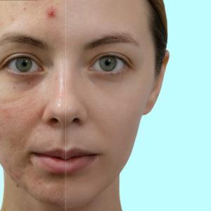 acné leve o moderado