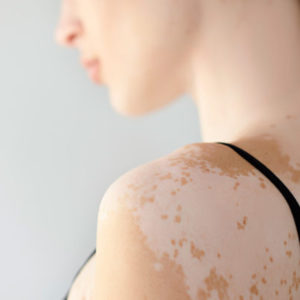 causas del vitiligo