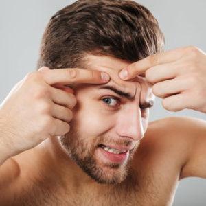 cuidados piel con acne