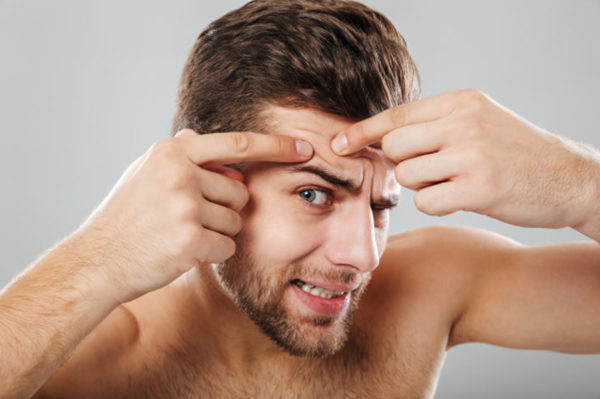 Rutina de cuidados para la piel con acné