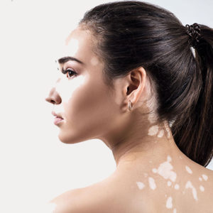 cura del vitiligo