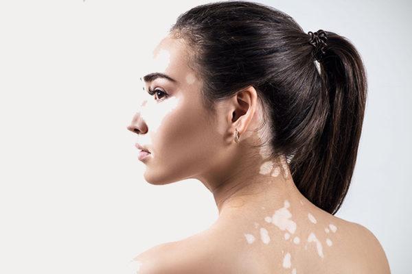¿Hay cura para el vitiligo?