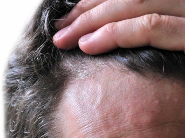 Dermatitis seborreica, síntomas y tratamiento