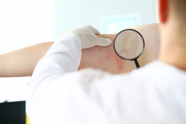 Dermatitis atópica ¿es cierto que mejora  en verano?