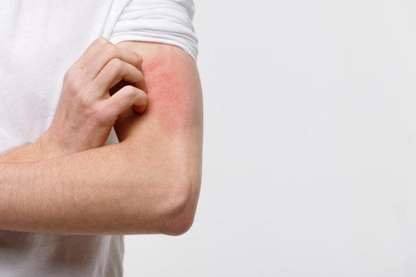 Dermatitis: tipos y síntomas