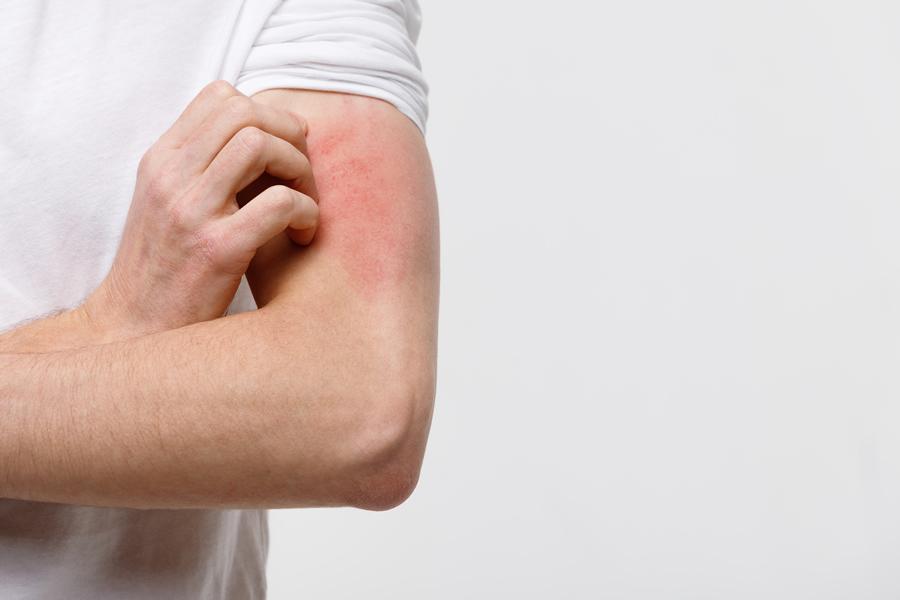 dermatitis tratamiento