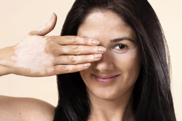 Adiós verano, 5 consejos para camuflar las manchas blancas