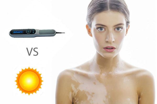 Tratamiento del vitíligo: diferencias entre la exposición solar y la fototerapia