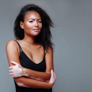 tratamiento del vitiligo con fototerapia