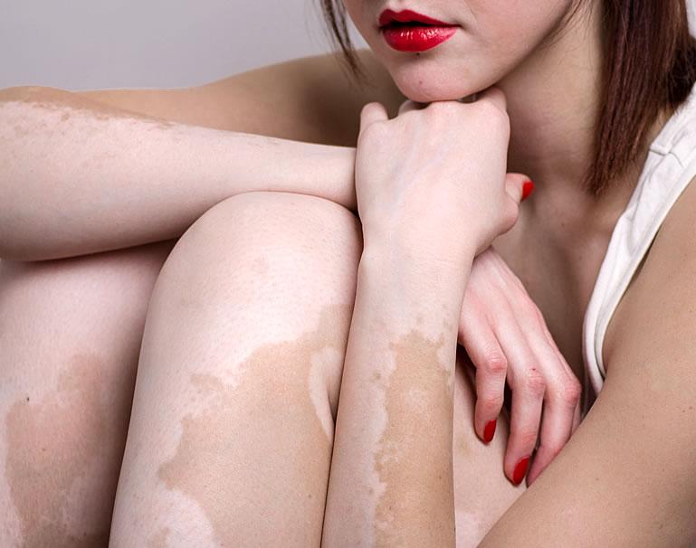 manchas producidas por el vitiligo