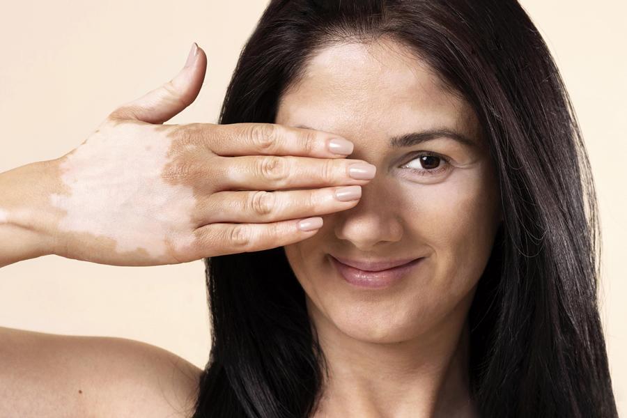 manchas blancas en la piel