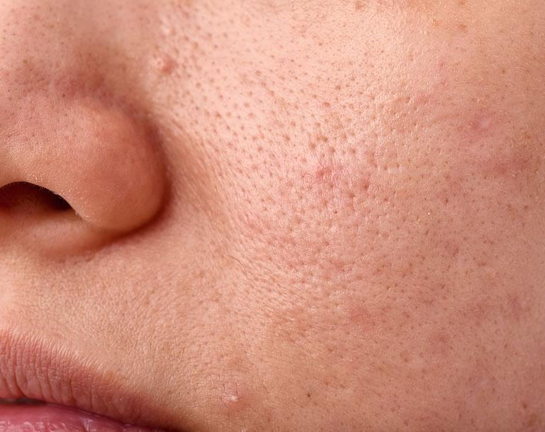 Pieles con acné