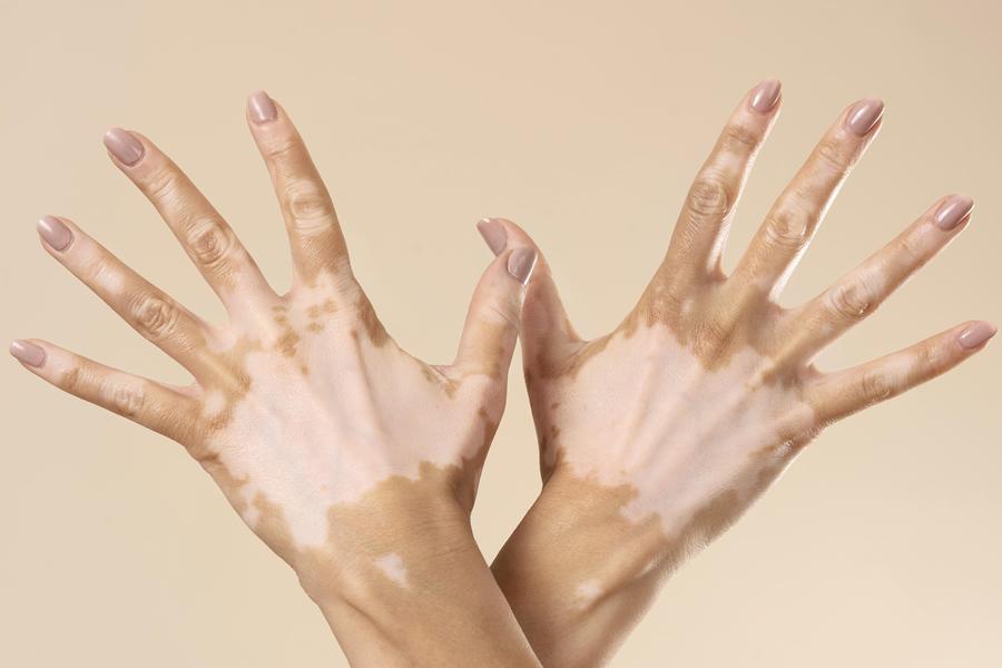 tipo de vitiligo
