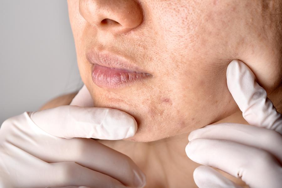 tipos de acné