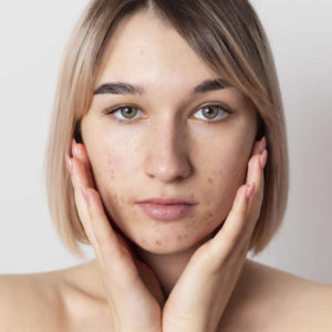 tratamiento del acne