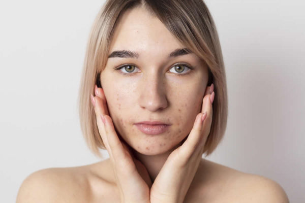 Recomendaciones para el tratamiento del acné